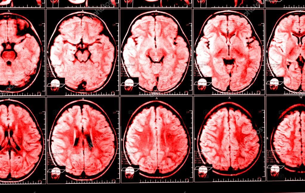 Исследования: частые жалобы физически меняют Ваш мозг, делая его более склонным к тревоге и депрессии