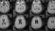 Как оскорбления изменяют структуру нашего мозга